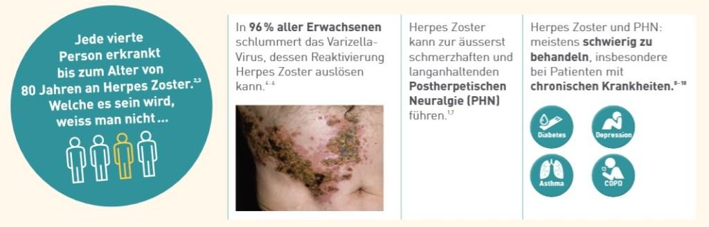 Grafik_Herpes Zoster